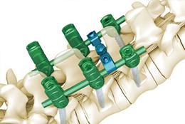 TINA脊柱后路内固定5.5系统