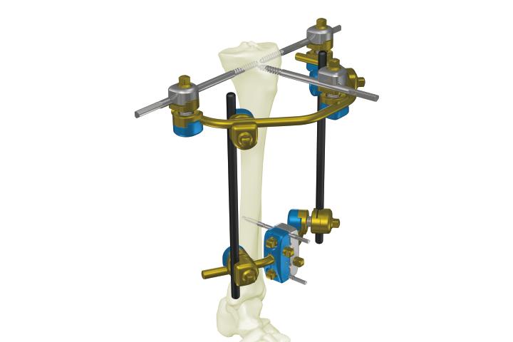 碳纤外固定支架(SK型)