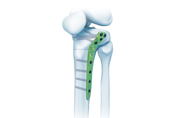 胫骨近端外侧截骨锁定板
