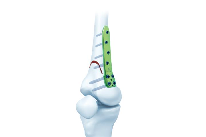 股骨远端内侧截骨锁定板