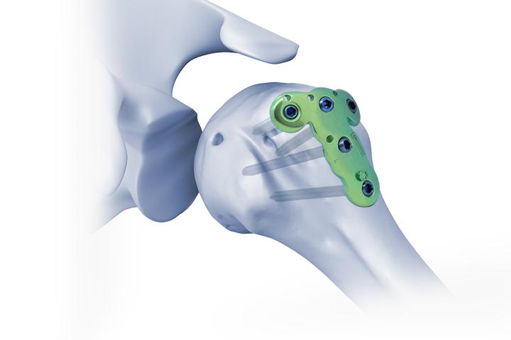 肱骨大结节带柱锁定板