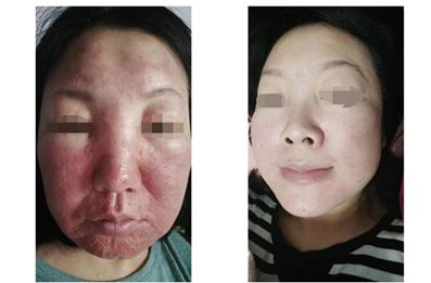 中药调理祛痘以及调理肤色