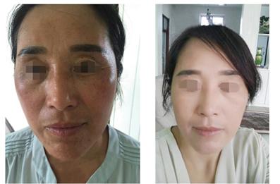 中药调理祛斑护肤