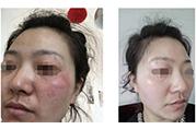 中药调理祛斑以及调理肤色
